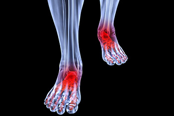 arthritic foot and ankle care treatment in the Chicago Heights, Olympia Fields, IL 60461 area