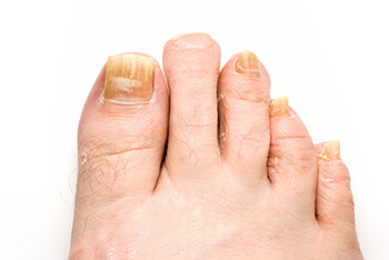 Fungal toenails treatment in the Chicago Heights, Olympia Fields, IL 60461 area