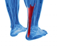 Two Types of Achilles Tendonitis
